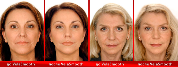 velasmooth-kiev-face-2